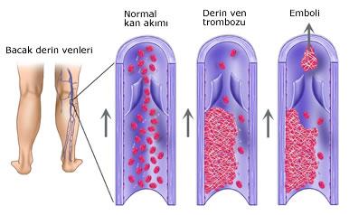 Tromboflebit
