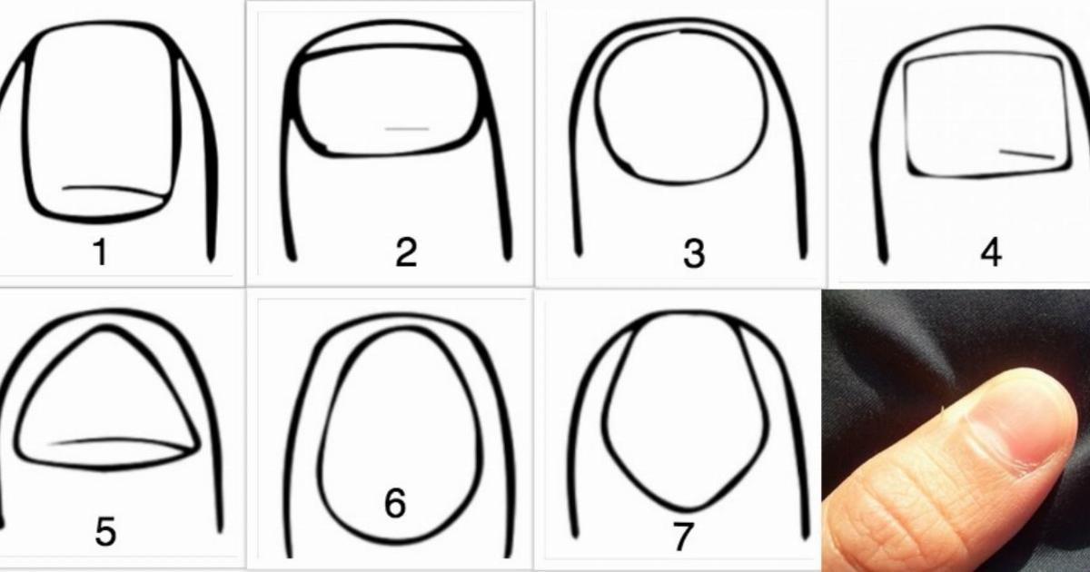 Herkesin farklı tırnak yapısı vardır. Bazılarının uzun ve ovalken bazılarının ise kısa ve karedir.