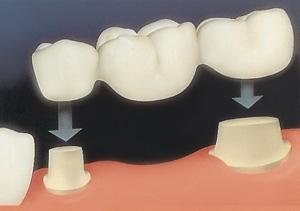 Porselen Diş Köprüleri