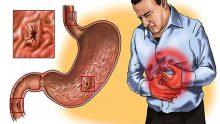 Gastrit İçin En Güçlü Çare ! Ağrınız Bir Anda Kaybolacak !