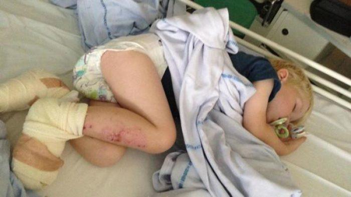 3 Yaşındaki Çocuk Plajda Oynarken Ayak Parmaklarını Kaybediyordu – Anne Şimdi Bütün Ebeveynleri Uyarıyor