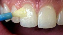 Diş minesini nasıl yeniden canlandırıp dişleri pürüzsüz bembeyaz yapabiliriz