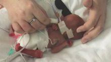 Bebeği Yalnız Gömülmesin Diye Oyuncak Tavşan Aldı – Haftalar Sonra Doktorlar Gözlerine İnanamadı