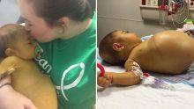 Bebeğin Karnı Giderek Şişiyordu – Doktorlar Anneye Acı Haberi Verdi