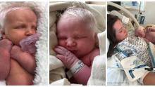 Bütün Dünyanın Fotoğraflarını Paylaştığı Pamuk Prensese Benzeyen O Bebek