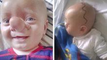 Burnu Yüzünden Çocuğa Pinokyo Deyip Dalga Geçtiler – 3 Yıl Sonra Bakın Nasıl Değişti