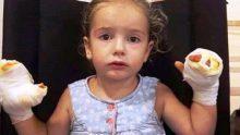 Uçan balon küçük kızı yaktı! – Çocuklarınıza Balon Alırken Bir Daha Düşünün