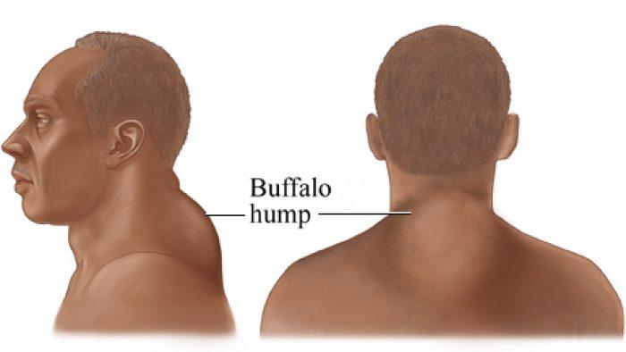 humped-neck-albino-women-porn-pics
