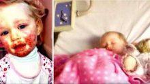 Dikkatsizliği Sonucunda Kızı Bu Hale Geldi – Anne Şimdi Diğer Ebeveynleri Bu Gizli Tehlike Hakkında Uyarıyor