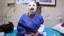 Düdüklü Tencere Bir Kadını Daha Hastanelik Etti! Haberi ve Düdüklü Tencerenin Doğru Kullanımını Okuyun