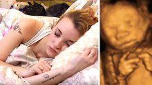 İlginç Hastalığa Sahip Genç Anne Doğum Yaparken Bile Uyudu