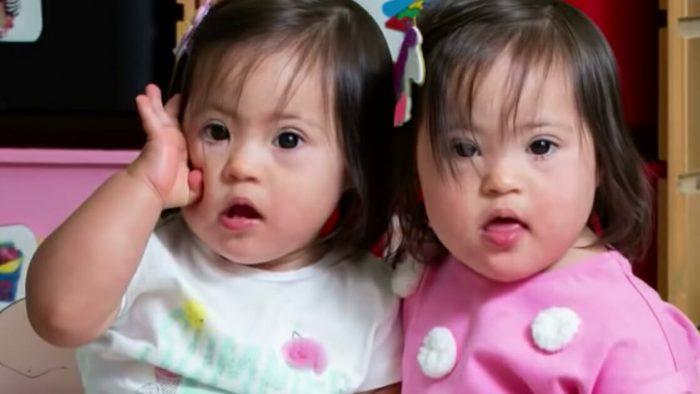 Dünyaya Gelme Şansları Milyonda Bir Olan Down Sendromlu Tek Yumurta İkizleri 18 Aylıkken Modellik Yapmaya Başladılar