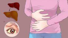 Karaciğer Yağlanmasının 7 İşareti Doğal ve Kolay Çözüm Yolları