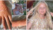 Tatildeki dövme küçük kızın hayatını zehir etti