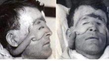 Tarihin ilk plastik cerrahi ameliyatı! Son hali inanılmaz..!