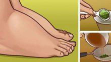 Şişmiş Ayak ve Ayak Bileğine Denenmiş 3 Doğal Çözüm