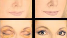 Göz Kapağı Estetiği Hakkında Genel Bilgiler
