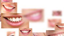 Diş estetiği ile gülüş tasarımı
