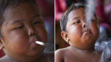 İki Yaşındayken Günde 2 Paket Sigara İçen Çocuk 6 Yılda Bakın Ne Hale Geldi