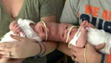 Son Derece Riskli Bir Operasyonla Birbirlerinden Ayrılan Siyam İkizleri Bugün Bakın Nasıl Görünüyorlar