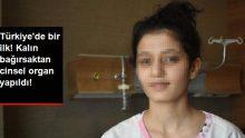 Cinsel Organı Olmayan Genç Kıza, Bağırsaktan Cinsel Organ Yapıldı!